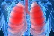Vospalenie legkih u vzroslyih simptomyi lechenie