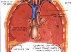двустороннее воспаление легких