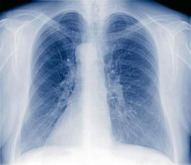 воспаление легких у детей лечение