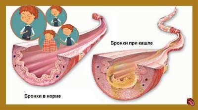 Симптомы у ребёнка: сухой кашель, температура