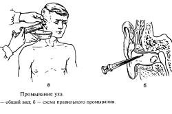 Промывание уха отоларингологом