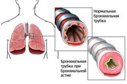 Бронхиальная астма - разновидность заболевания бронхов