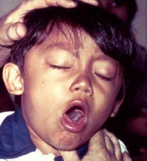 заразен ли хронический бронхит