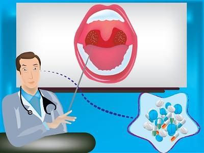 Передается ли хронический тонзиллит и как его лечить