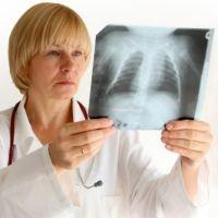 Хронический кашель: Причины и лечение