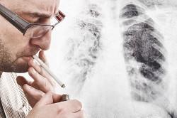 Влияние курения на сопротивляемость пневмонии
