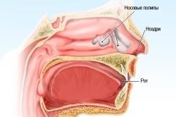 Полипы в носу - причина насморка