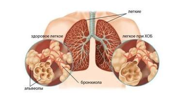 Антибиотики при бронхите у взрослых название уколы