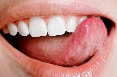 Болит корень языка и горло